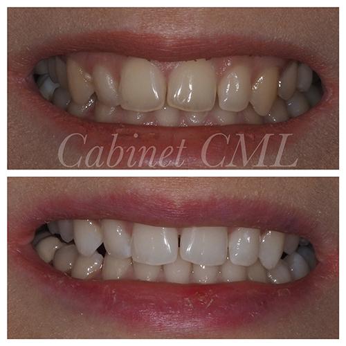 Claircissement dentaire draveil dr leymarie dentiste draveil - Cabinet dentaire dammarie les lys ...